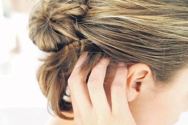 Hair Dye Allergy Home Remedies